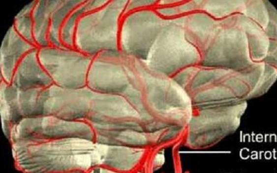Brain Haemorrhages