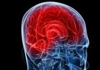 Trauma and Headaches