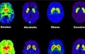 Headaches: multiple causes