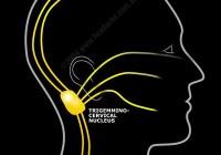 Neuralgia: Nerve pain